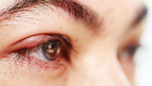Cara Mengatasi Mata Bintitan